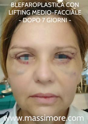 Blefaroplastica associata a lifting medio-facciale