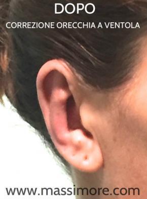 Correzione orecchie a ventola