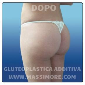 Gluteoplastica additiva intramuscolare
