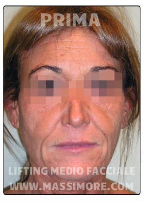 Lifting medio-facciale sottoperiosteo