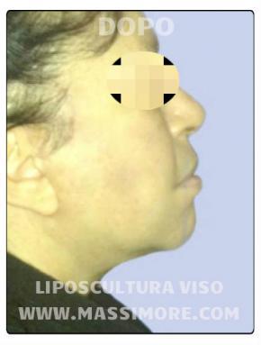 Liposuzione viso