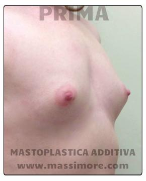 mastoplastica additiva per via ascellare