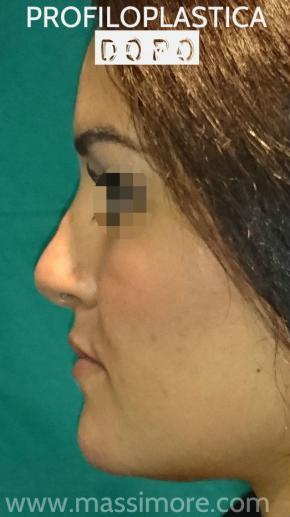 Rimodellamento del naso e del mento