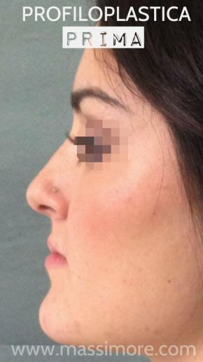 Rinoplastica associata a mentoplastica riduttiva