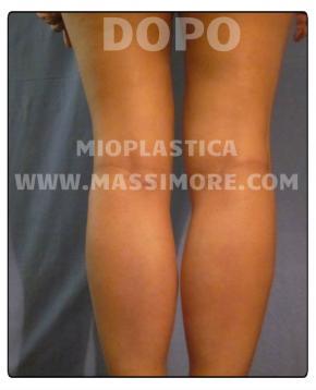 Aumento dei polpacci con protesi
