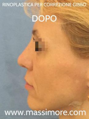 Rinoplastica per correggere gibbo nasale
