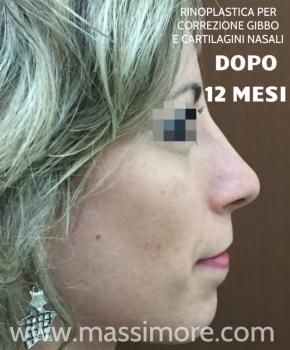 Rinoplastica per eliminare gibbo nasale ed alzare la punta - a 12 mesi dall\\\'intervento