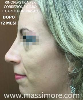 Rinoplastica per eliminare gibbo nasale ed alzare la punta - dopo 12 mesi
