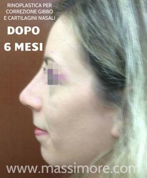 Rinoplastica per eliminare gibbo nasale ed alzare la punta - a 6 mesi dall\\\'intervento
