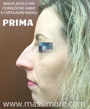 Rinoplastica per eliminare gibbo nasale ed alzare la punta