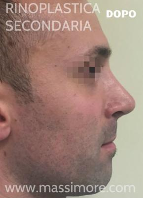 rinoplastica secondaria