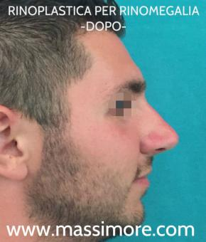 Rinoplastica maschile per rinomegalia