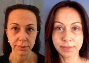 lifting del sopracciglio + lifting cervicofacciale + blefaroplastica - prima e dopo