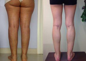 intervento liposuzione e protesi ai polpacci