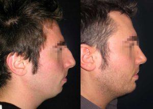 profiloplastica immagini prima e dopo
